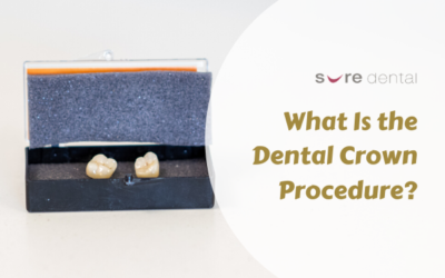 What Is the Dental Crown Procedure?