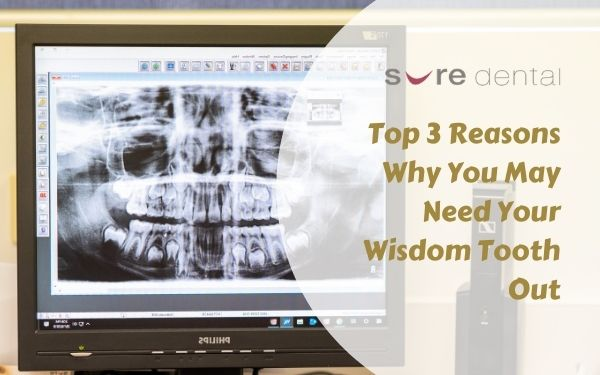 Top 3 Reasons Why You May Need Your Wisdom Tooth Out